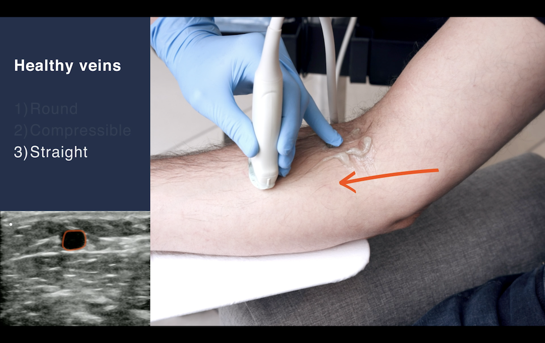 Locating a Usable Vein with EchoNous Vein